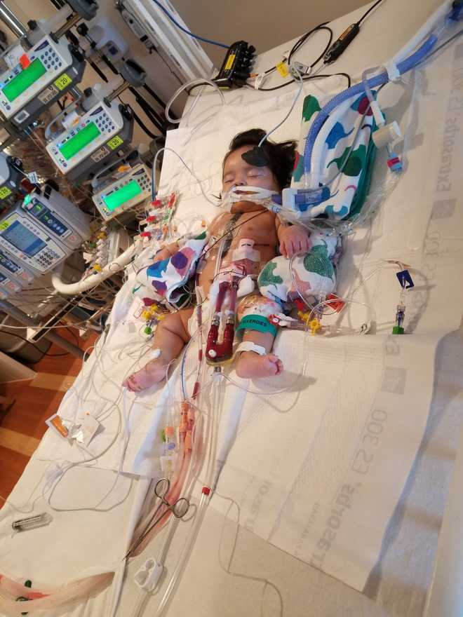 LUCILE PACKARD CHILDREN'S HOSPITAL STANFORD